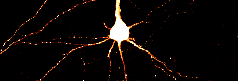 Layer 5 Somatosensory cortex pyramidal neuron