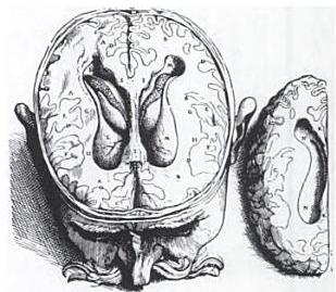 Cervell dibuixat per Vesalius